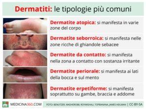 dermatite atopica, tabella